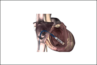 Leadless pacemaker implantation in india